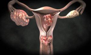 Serviks (Rahim Ağzı) Kanseri Nedir, Neden Olur? Tedavi Yöntemleri Nelerdir?